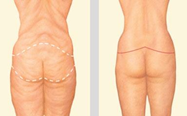 Cirugía Post-Bariátrica
