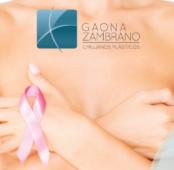 Opciones frente a la cirugía reconstructiva de seno