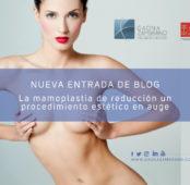 Mamoplastia de reducción, la nueva tendencia en cirugía estética