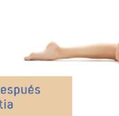 Cuidados vitales después de una Gluteoplastia